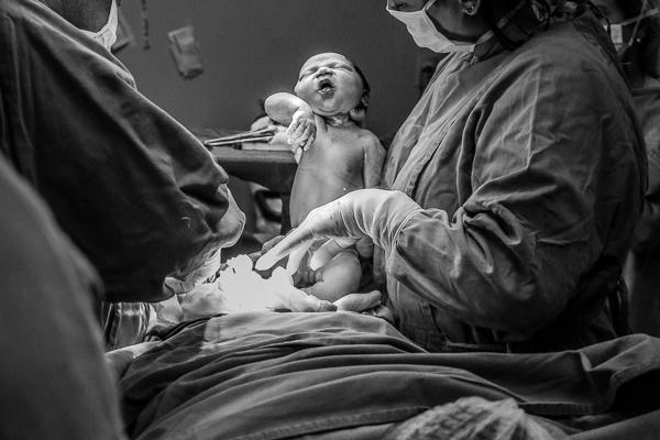 Fotografia de Parto – NascimentoRahel